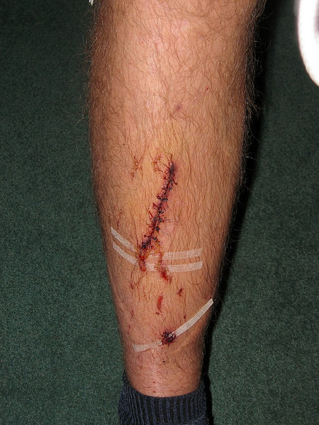 James' leg before he even left for Spain.