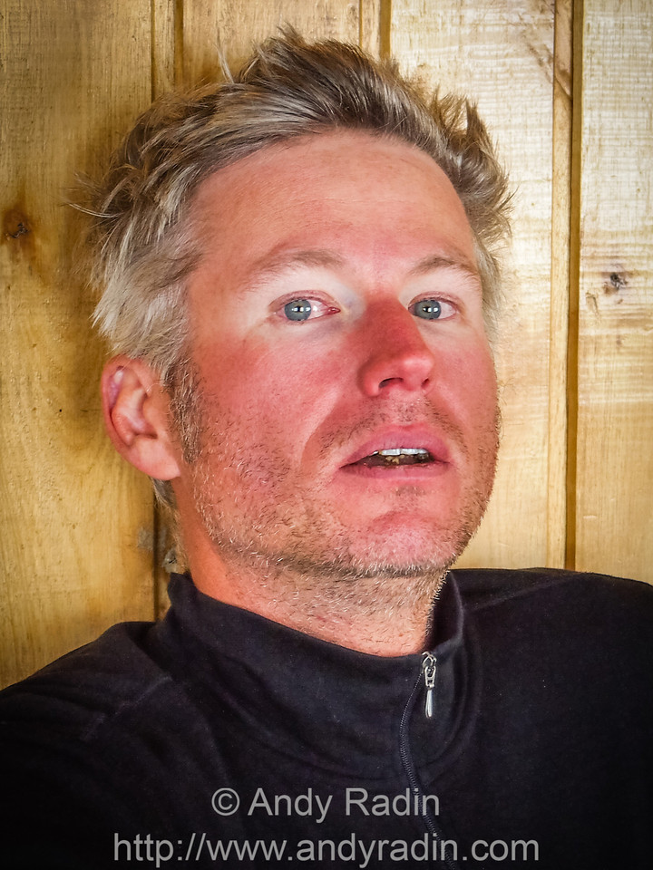 Aftermath of Cayambe - windburn, dry eyes, dehydration, raccoon eyes