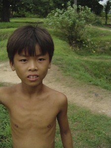 Young very thin Cambodian boys at the Killing Fields