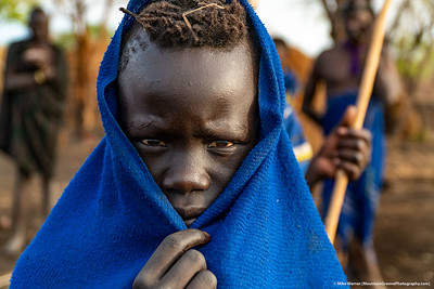 ##3A and 3B – Mursi village, outside Jinka, Ethiopia.  A jaundiced eyed (from the lack of clean drinking water) boy stares into the camera.  This tribe lives in grass huts, with no running water or electricity.