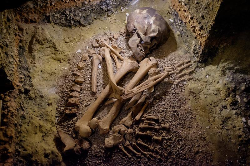 skeleton-1072