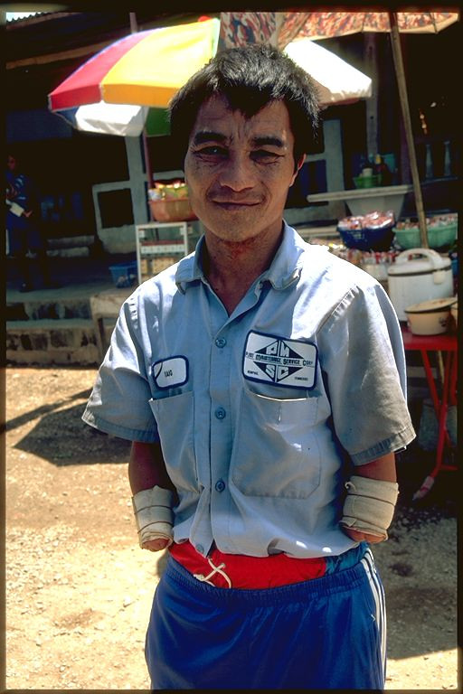 Man missing two arms in Laos