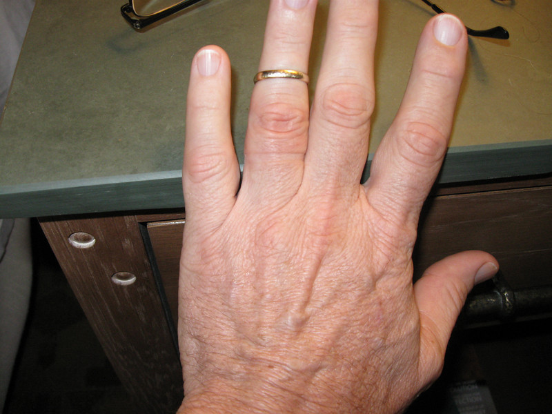 After waking at the Hyatt, my ring finger was so swollen that it took 15 minutes to remove the ring. It sat on the pinkie finger of the other hand for the next 5 days with no real danger of falling off.