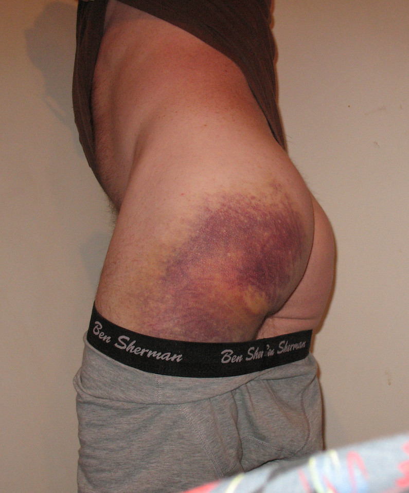 YEP... That's a bruise!