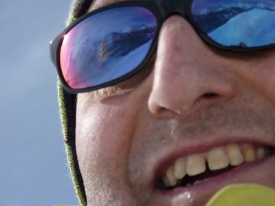 Windblown frozen tears from Shep's right eye