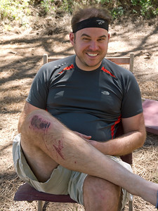 Happy times for Richard Even with a nasty road rash, Richard never stopped having fun.