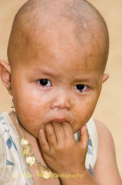 You Would Cry Too If You Had A Bug In Your Eye!, Maehongson, Thailand