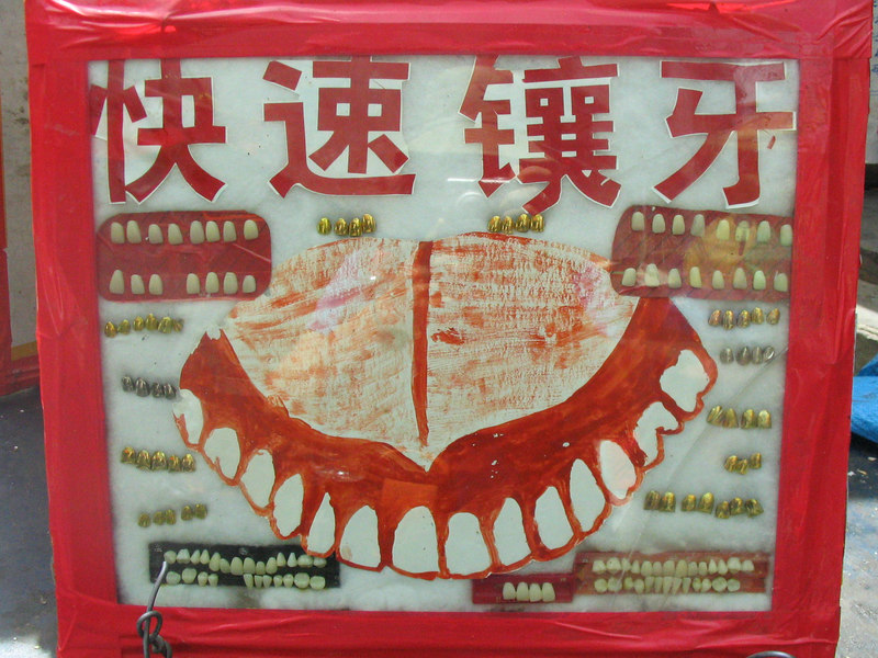 Stop by and get some gold teeth.  Next to the yak meat stand.