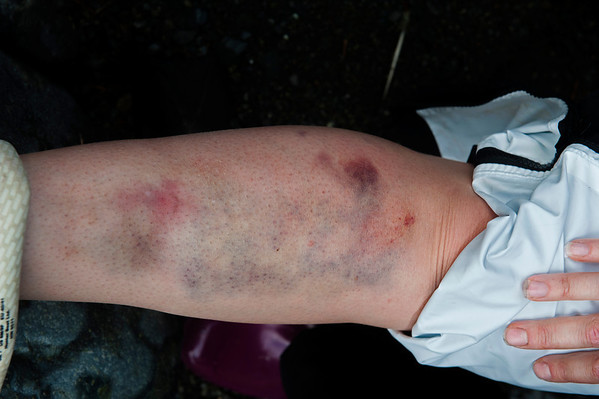 Christie's leg after a trip on the way back from Eagle Eye.