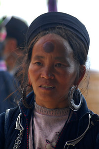 © Joseph Dougherty.  All rights reserved.   H'mong woman with a coining scar on her forehead.  Coining is a traditional tribal medical practice, intended to relieve headaches, bad dreams, or other afflictions.
