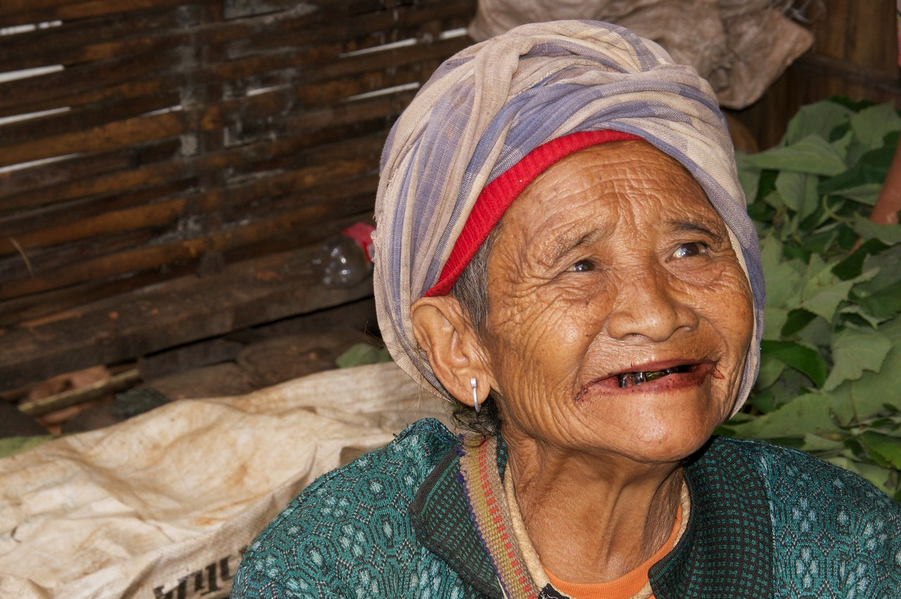 the Shaman's wife (Betelnut stained teeth.)