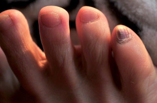 Yuppers, gonna lose that little toenail...