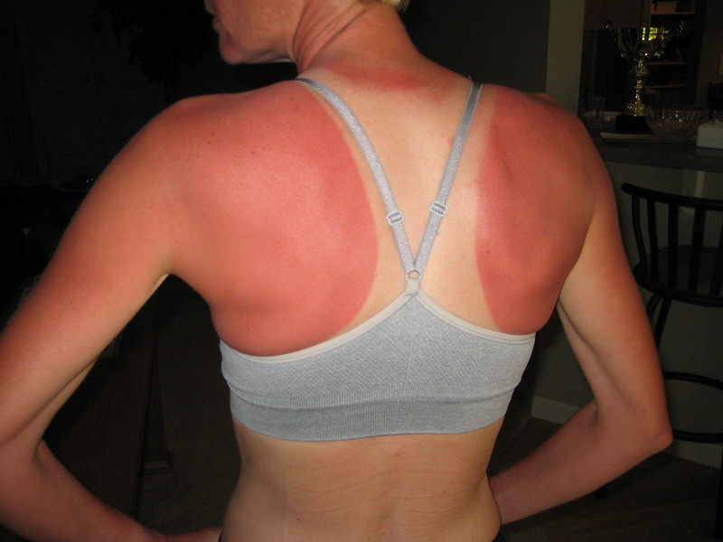 And this was with sunscreen.