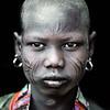 Topossa facial scars