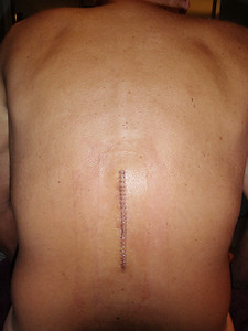 First time the hospital bandages removed at home to apply new bandage ....24 metal staples!   Incision looks good!!