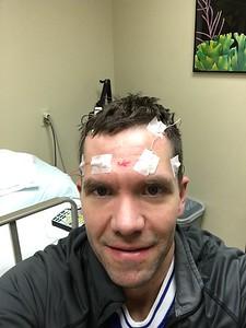 tumor removal 2018