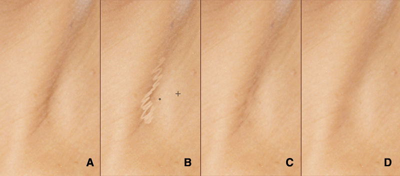 "Here's an unsightly wrinkle that we're simply going to take out (A). Keep in mind, the healing brush is quite forgiving. You don't need to worry about lining up your sample with your target, you don't need to be particularly precise. (B) shows a typical stroke that I might make, and the result (C). And after four or five similar strokes we arrive at (D). <br /> <br /> The question could be raised, ""Why use the healing brush for a shadow like this? Why not a dodge/burn layer?"" As I will demonstrate, I make extensive use of dodge/burn layers to lighten and darken selective areas. However, unlike the healing brush, dodging and burning requires infinite patience and subtlety. And precision. Large imperfections like this wrinkle are among the first things that I'll attack, and I do it with the healing brush because it's fast. I can be sloppy. I basically scribble over the target area; maybe I'll draw circles, maybe half-moons. It doesn't matter. The healing brush responds to all of it and after a relatively short time, the gross imperfections suddenly become much less noticeable. And much more conducive to the refined shifts that dodging and burning provide."