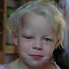 Tyka is een beetje allergisch voor muggebeten...
