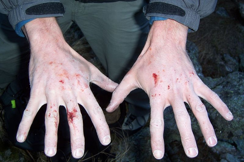 the results of desperate climbing, in the cold, without using tape gloves