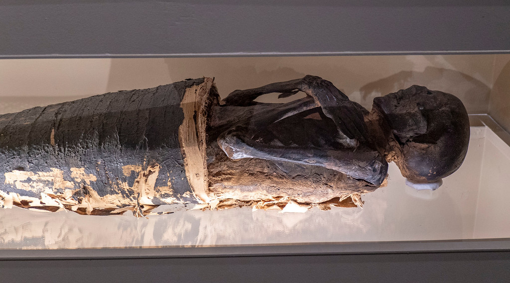 Albany Institute of History and Art - Partially Unwrapped Mummy