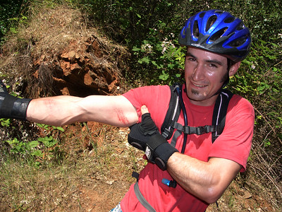 Corbin Dunn shows the marks of an aggressive rider