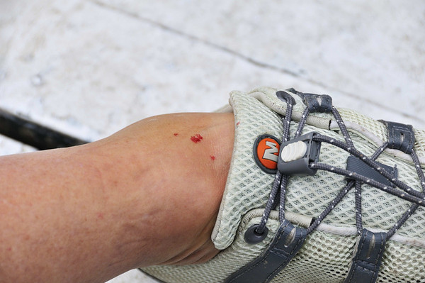 Suzanne's black fly bite, Rio Tapiche, The Amazon, Peru