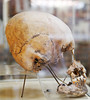 Same skull showing how the people deformed the bones with flat boards during infancy