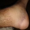 When you pull your calf, the foot will turn purple