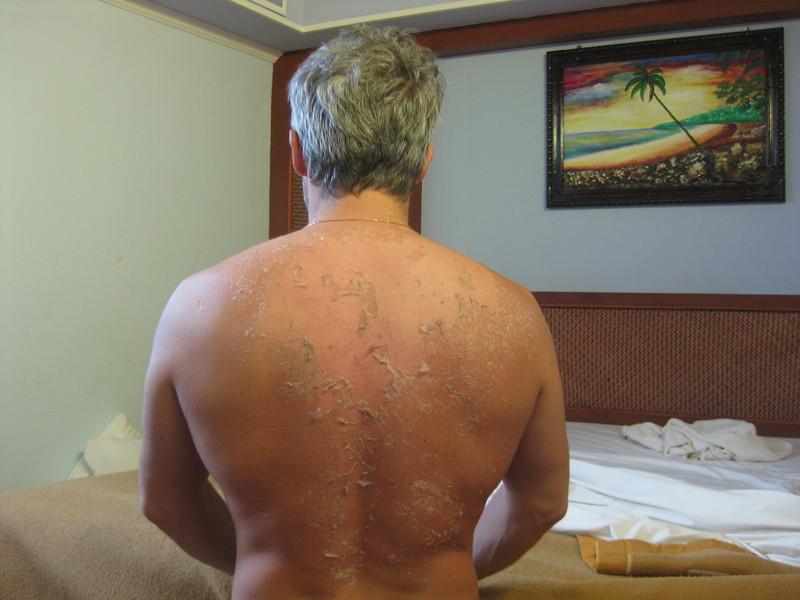 Sunburn is giving a skin shedding