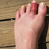 "From the first day, ""surfer's toe,"" probably from kicking the board during a wipeout."