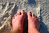 Both tops of my feet sunburned, also jammed big toe on left during trampoline, and flesh wound during trapeeze