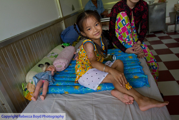This little girl had been badly burned by boiling water. Her mother was attentive in the hospital, and the visiting American nurse specialized in burn treatment.