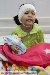 A child underwent surgery during a medical  mission to Vietnam
