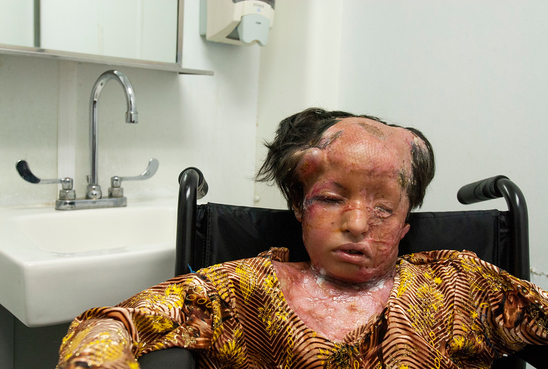 Afghan Girl, 8, Burned By White Phosphorus