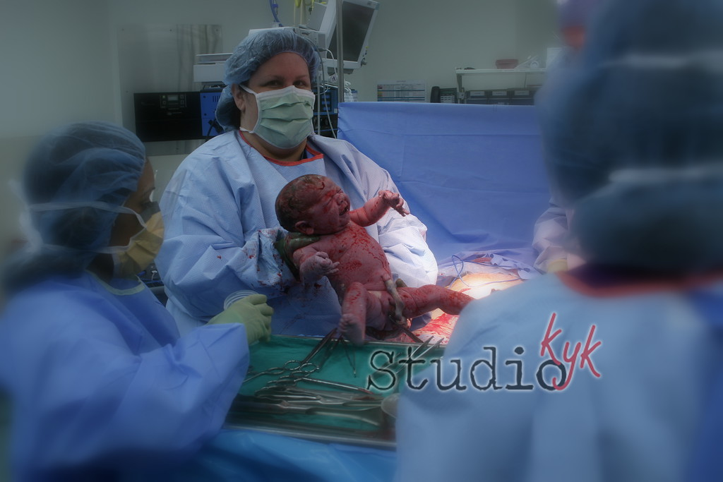 Q: What if I am having a c-section…   A:Every birth experience is worth photographing....  most of the time the hosipital will allow me into the OR,  but it has happened  I will do my best to ge in if not there are still many important moments I'm able to capture during this amazing day.