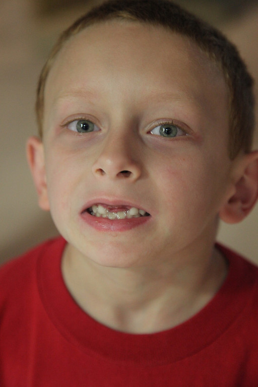 He lost his two front teeth right before the wedding!