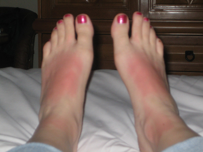 My poor feet got sunburned in Yelapa.  That was the worst I got, though, so I can't complain too much.