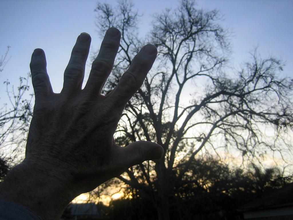 Matt,  photographer and friend,  shows his hand.