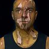 Skin Peeling