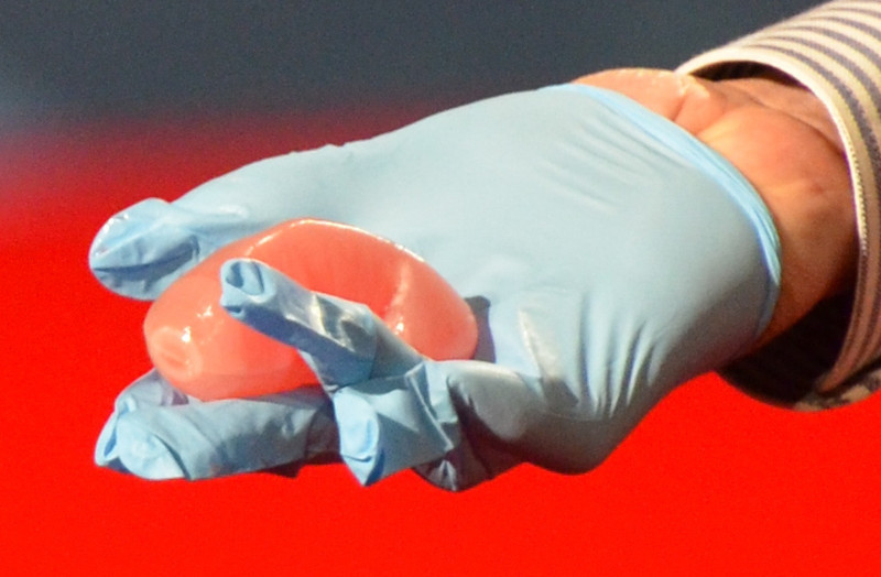 Kidney Printed via a 3D printer, Long Beach CA