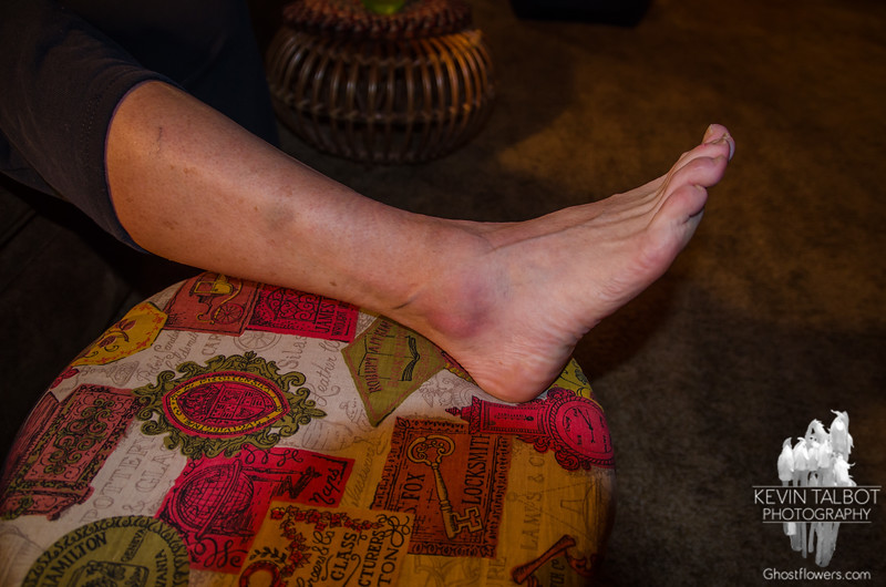 Judy's ankle after dislocation, relocation and 12 more miles...