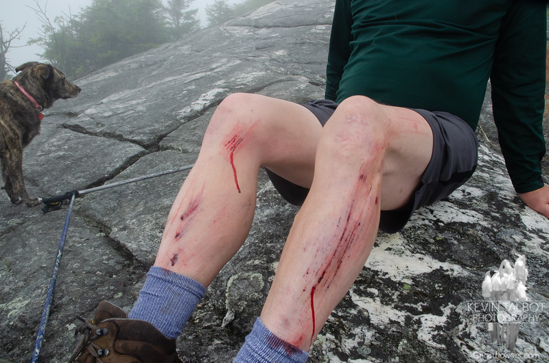 """A few weeks ago I actually bought a trail first aid kit. We had always carried a few emergency items, but sadly inadequate. Fortunately I had it and I was able to clean this up a bit. """"It's not a hike until someone bleeds..."""" has long been a motto, not sure why it always has to be me! Honestly though, if it has to be someone, then I would prefer it be me than Judy or Wicket- Mount Cardigan: Paid for with an ounce of flesh!"""