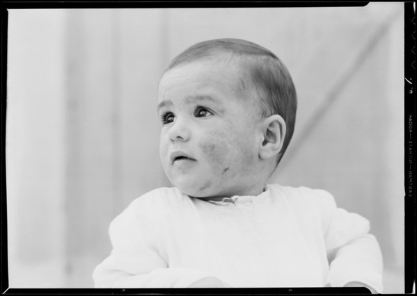 Baby with eczema, Southern California, 1932