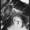 Burns on head caused by permanent wave machine, Mrs. Ambrose, Southern California, 1933