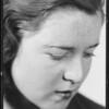 Girl with scar, Warburton Vs. Long, Southern California 1933