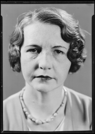 Betty Brickman showing scar on face after automobile accident, Southern California, 1932.