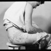 Skin disease on patient, Southern California, 1932