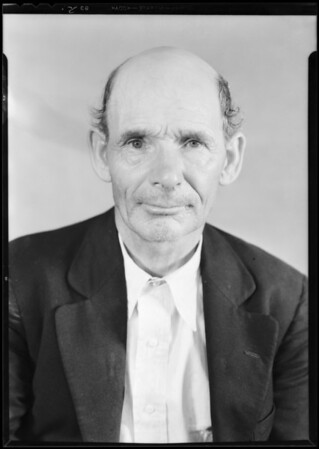 Harry Wheatley, claim 45789 S. C., to show disfigured face, Southern California, 1931