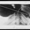 X-rays and letter, Southern California, 1931