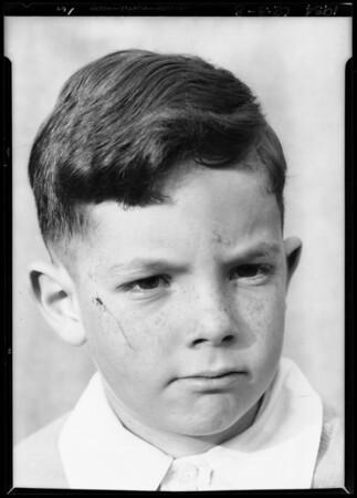 Boy's scar, Southern California, 1934